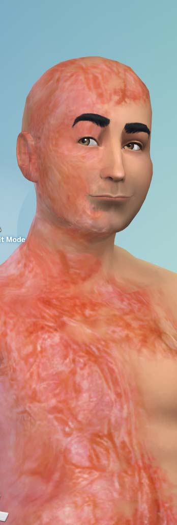 Mod The Sims - Automatic Burn Scars Skin Detail (update 3/7)