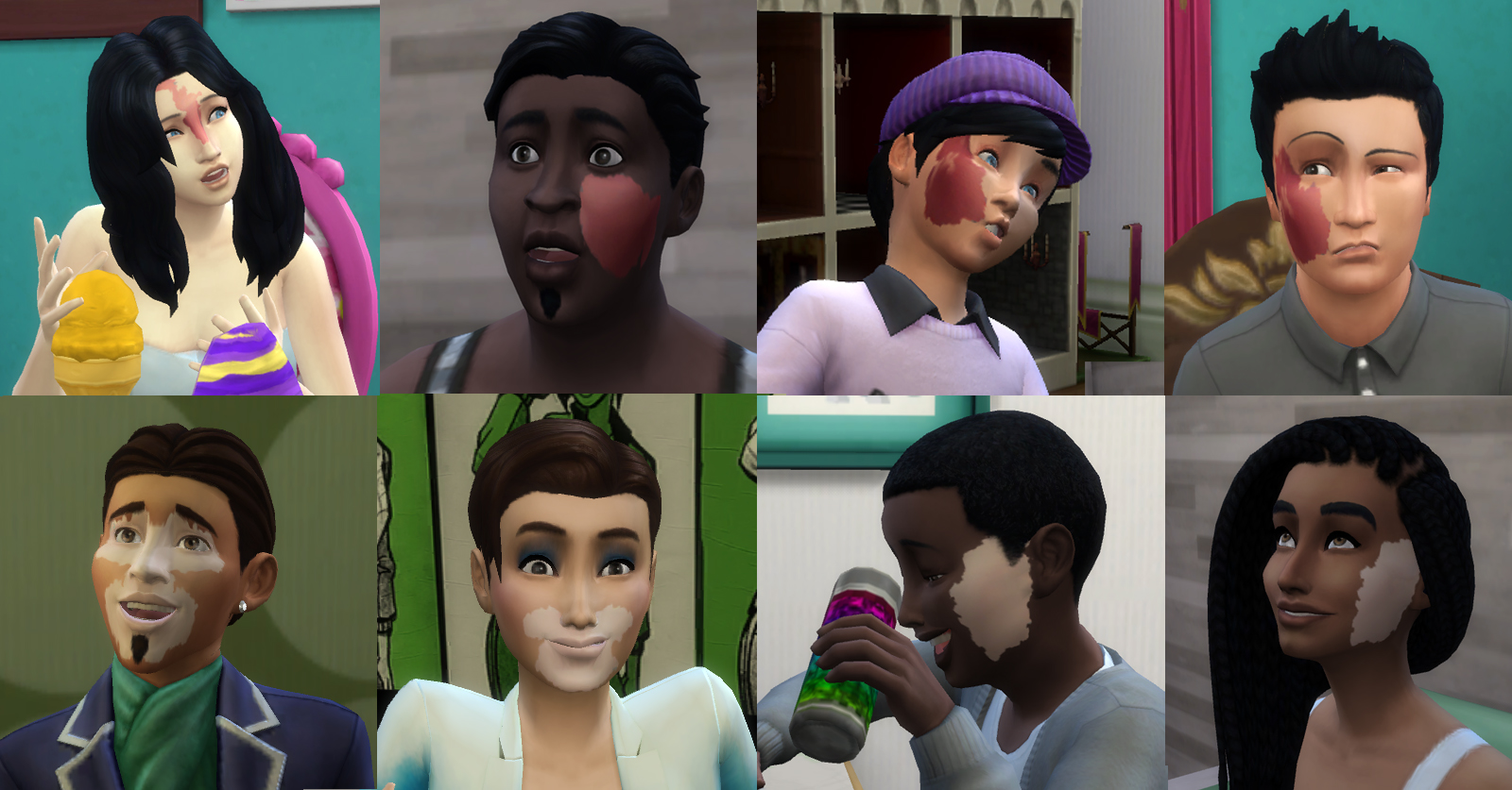 Mod The Sims Port Wine Stain Vitiligo Facial Marks