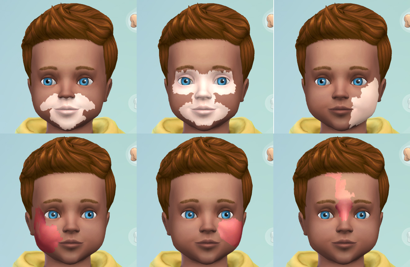 Mod The Sims Port Wine Stain Vitiligo Facial Marks For Toddlers